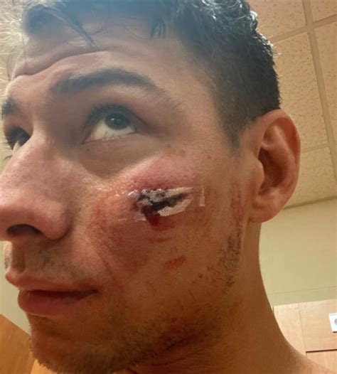 PHOTO: Michael McNiven Shows Off Wound From Weber Slap Shot