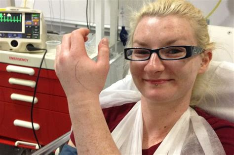 Bury woman's Adder bite hell – while walking the dog