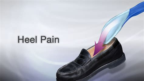 Heel pain Heel pain can be a common problem